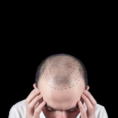 Saç Kaybı İçin PRP Uygulanması