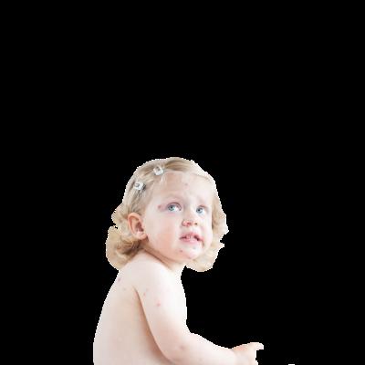 Çocuklarda Suçiçeği Belirtileri ve Tedavisi Nelerdir?