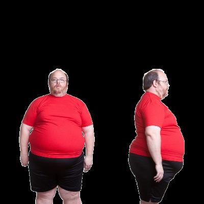 Obezite Cerrahisi Uygulamaları Nelerdir?