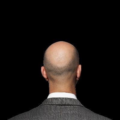 Saç Ekimi Kimlere Yapılır? Uygulanan Yöntemler Nelerdir?