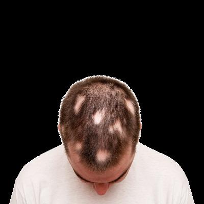 Saç Kıran (Alopesi Areata) Nedir? Nasıl Tedavi Edilir?
